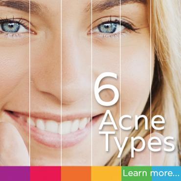 Find out which of 6 acne types best describes your skin.