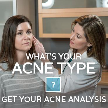 Whats-your-acne-type
