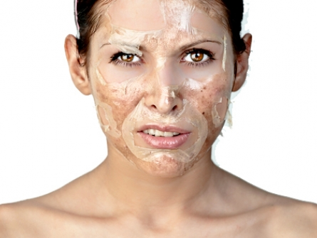 chemical peel peeling skin