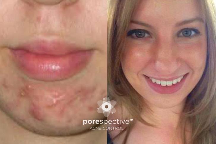 masque peau acnéique fait maison 9 ans