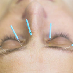 3-accupuncture