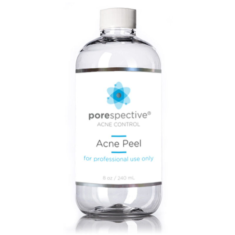 acne chemical peel